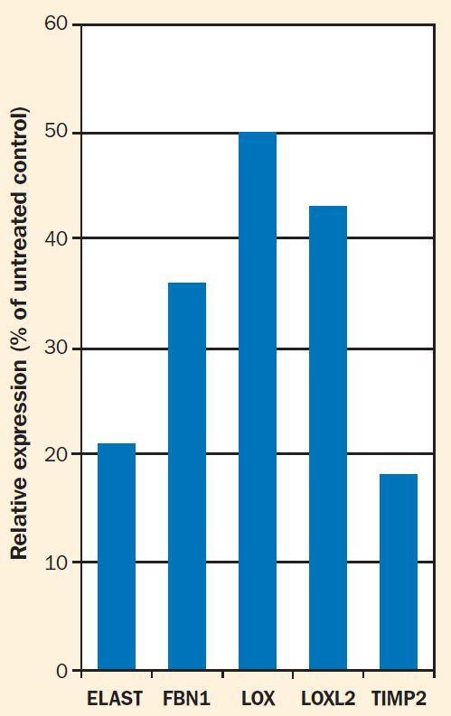 Undaria pinnatifida riattiva le gènes come l''espressione delle fibre elastiche