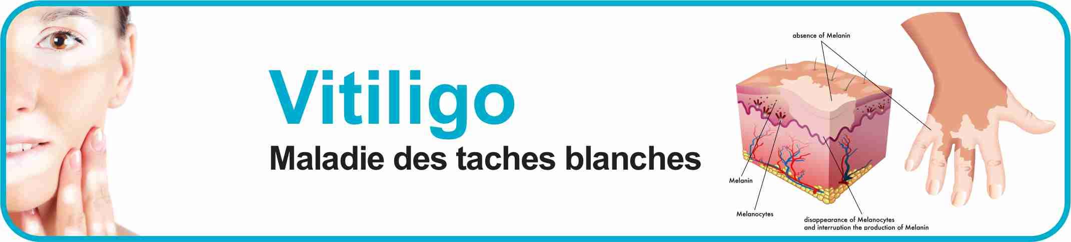 Vitiligo, la maladie des taches blanches...